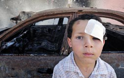 A boy injured in fighting in Misrata, Libya, is pictured near a burned-out vehicle. The city has been torn by months of war between rebels and troops loyal to strongman Moammar Gadhafi.