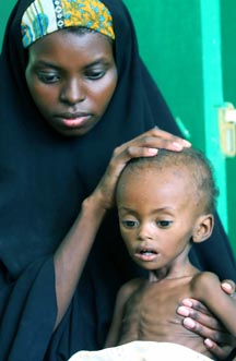 A woman holds a malnourished child in Mogadishu, Somalia. The UN has declared the famine a humanitarian emergency.
