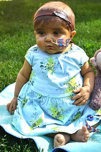 Baby Naomi had a successful liver transplant on July 6.